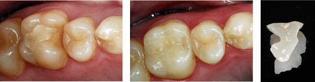 Stan zębów przed i po przeprowadzeniu leczenia kanałowego
