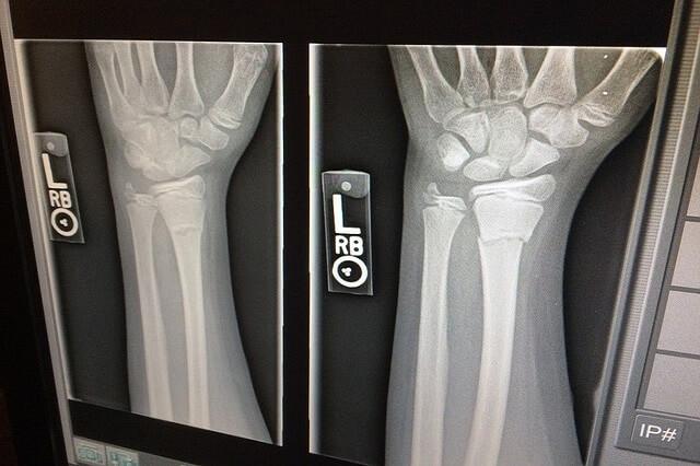 Zdjęcie rentgenowskie ręki na ekranie laptopa